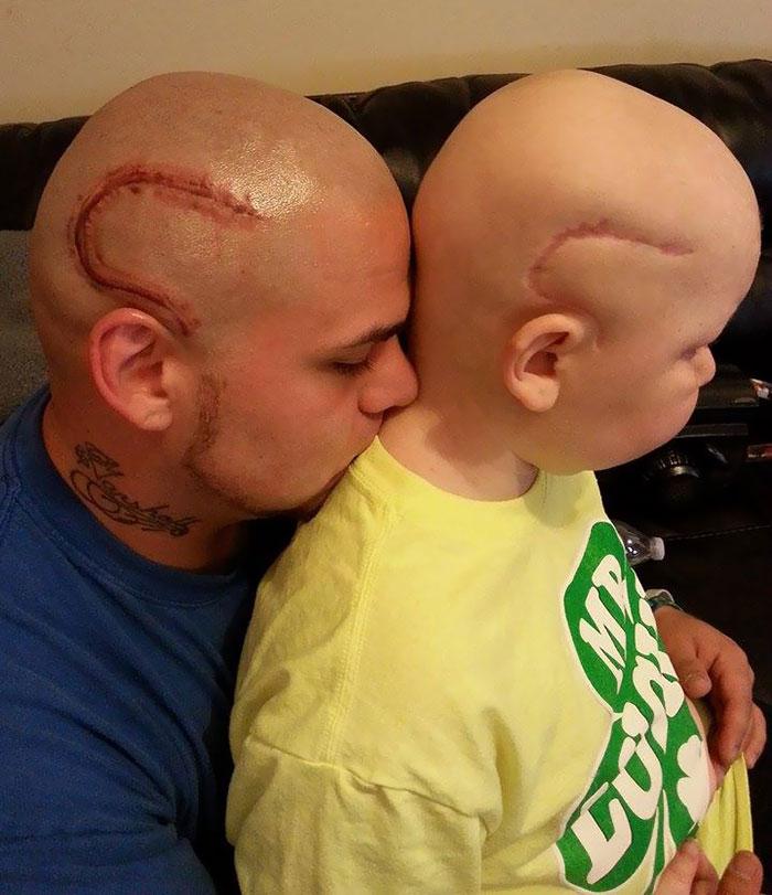 tatuaje-padre-cicatriz-cancer-hijo (1)