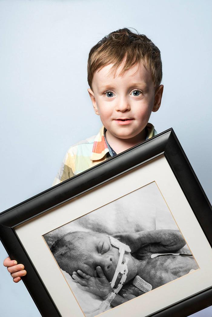 Elocuentes retratos del antes y después de bebés prematuros