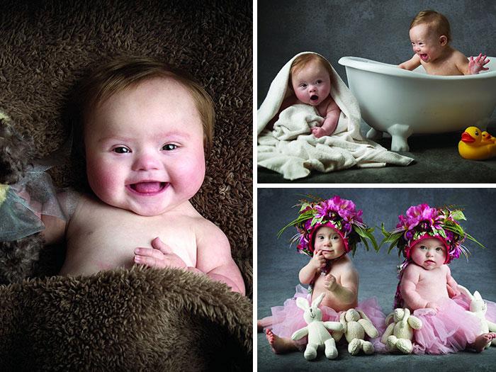 Estos bebés con síndrome de Down posan para una adorable sesión de fotos benéfica