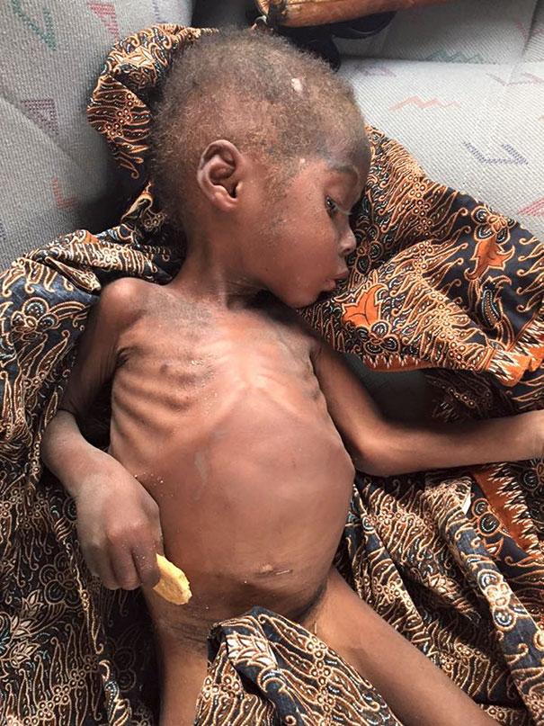nino-nigeriano-abandonado-brujo-rescatado-hope-2 (4)