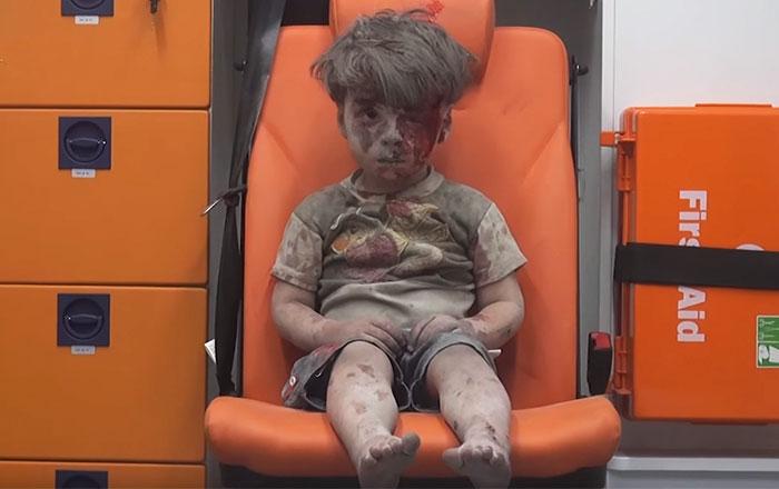 Esta desgarradora foto de un niño de 5 años totalmente aturdido muestra los horrores de la guerra civil siria
