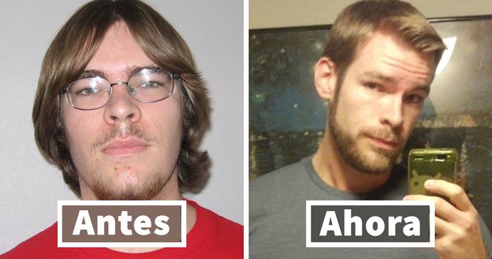 """Cuesta creer que estas personas sean las mismas tras compartir sus fotos cuando eran """"patitos feos"""""""