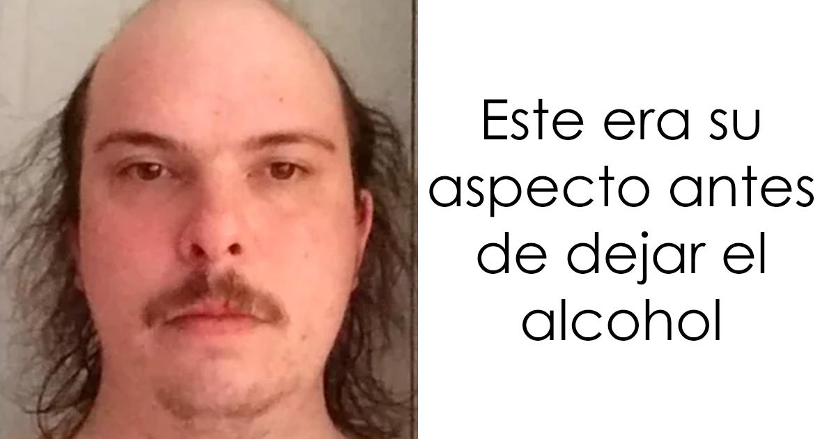 10+ Fotos de antes y después que muestran lo que pasa cuando dejas el alcohol