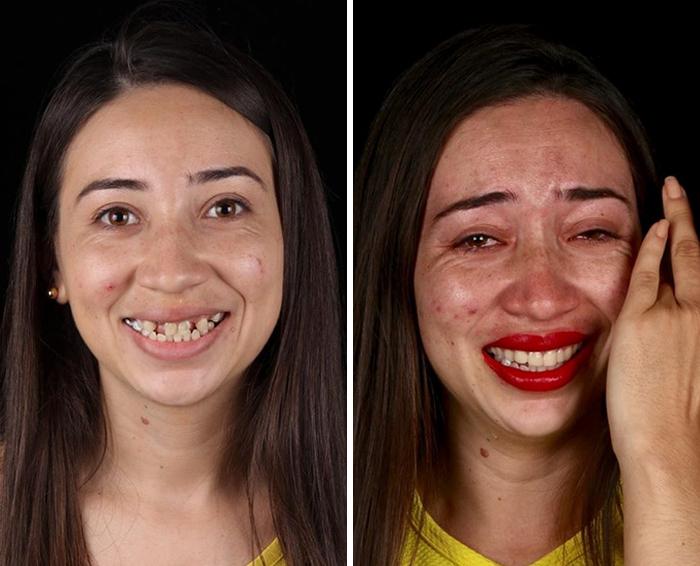 Un Dentista De Brasil Viaja Para Arreglar Gratis La Dentadura De Los Pobres
